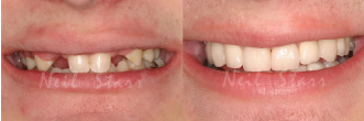 Before after smile of a patient after full mouth reconstruction procedure at Neil Starr, DDS, PC.