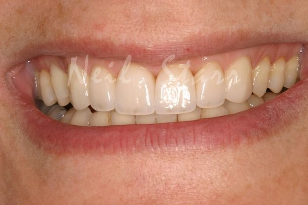 Smile Enhancement with Ceramic Veneers