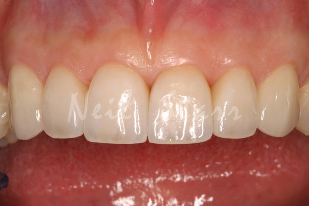 Improved with Ceramic Veneers