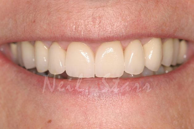 Final Smile with All Ceramic Crowns