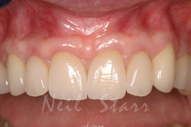 Enhanced Tooth Form with Ceramic Restorations