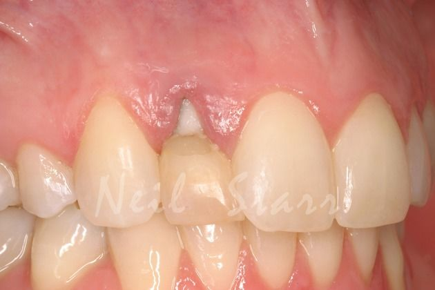 Lateral Incisor with Hopeless Prognosis