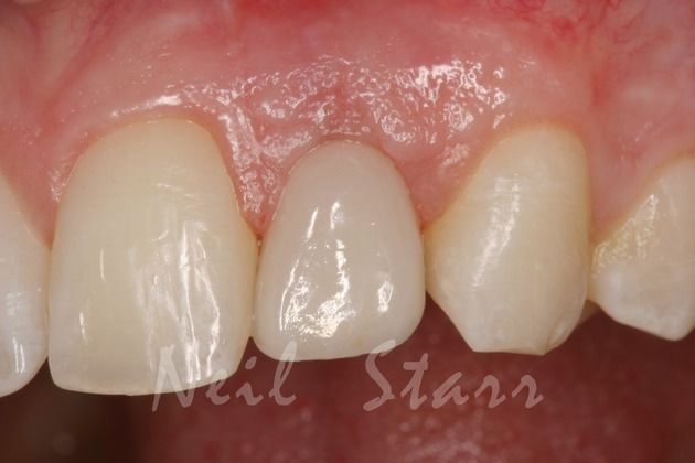 Final Implant Supported Crown