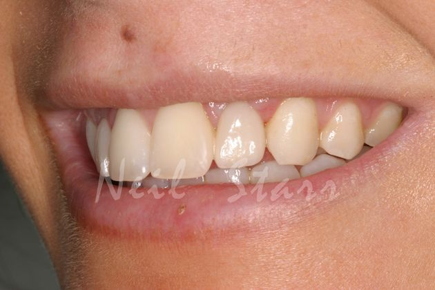 Smile with Ceramic Implant Crown