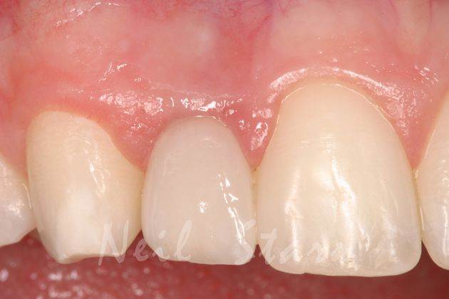 Finished Ceramic Crown on underlying Implant and Abutment
