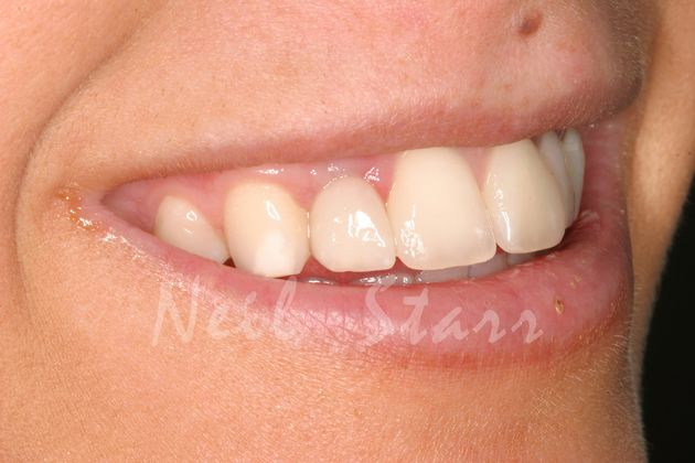 Smile with Permanent Implant Crown