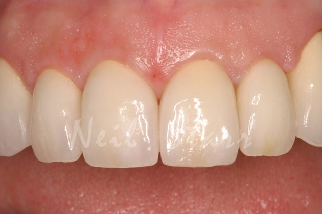 Eliminated Spaces with All Ceramic Crowns