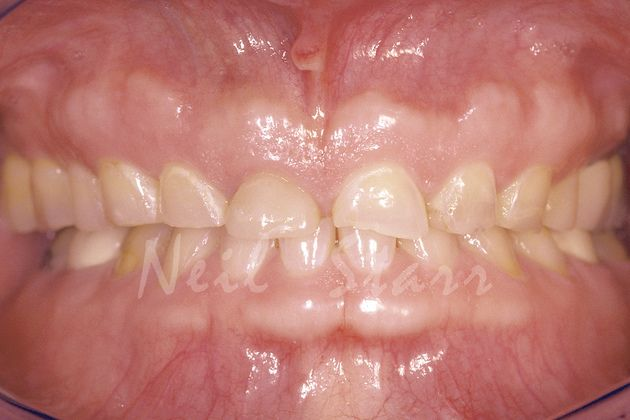Before: Erosion Resulting in Severe Wear of Natural Teeth