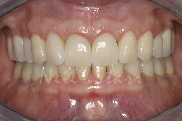 After: Rebuilding and Rejuvenating Teeth & Bite
