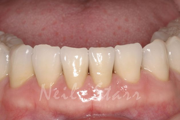 After: Beautifully Rebuilt & Rejuvenated Worn Teeth