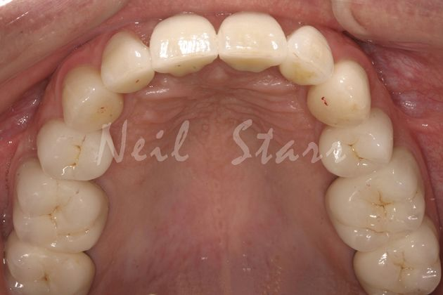 After: Restoring Worn Teeth with Dental Crowns