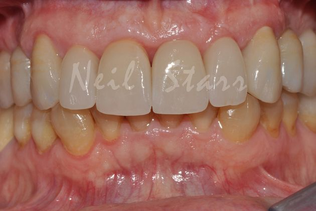 Beautiful High Strength Ceramic Crowns
