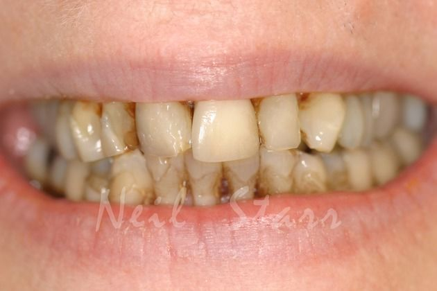 Before: Poor Appearance of the Patient's Smile