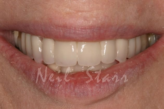 After: Beautifully Balanced Smile with Ceramic Crowns