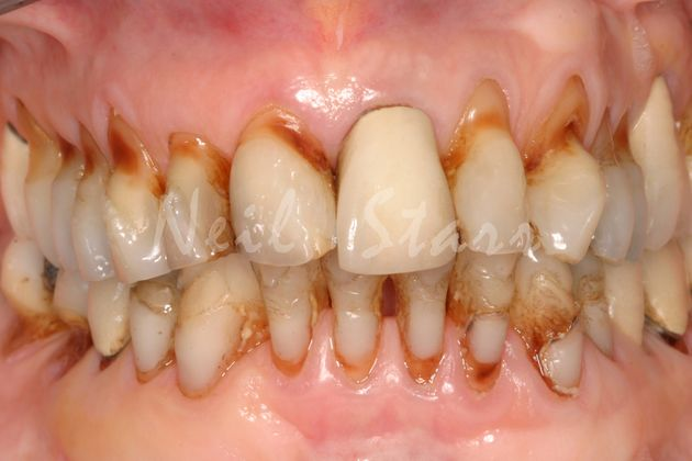 Severely Compromised Upper & Lower Teeth