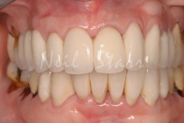 All Ceramic Crowns for Upper & Lower Teeth