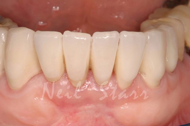 After: Rejuvenated Front Teeth with All-Ceramic Crowns