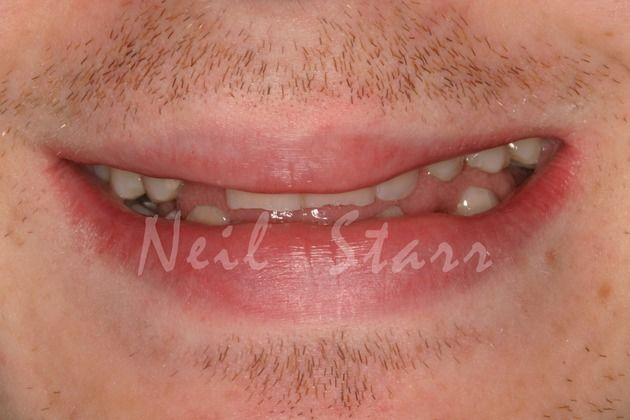 Narrow Smile Profile due to Collapse of Patient's Bite Relationship
