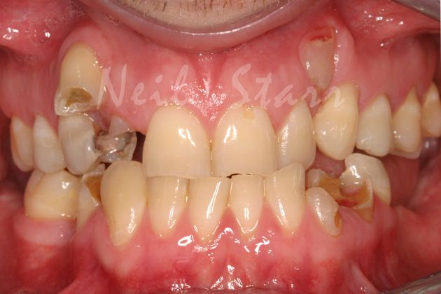 Severe Tooth Decay & Poor Tooth Position
