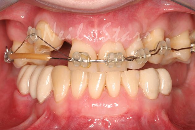 Orthodontics: Creating Alignment of Teeth