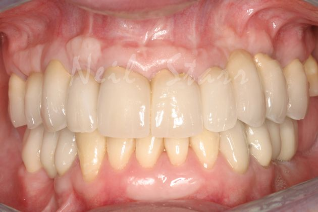 Final: Rehabilitation of Teeth & Implant Crowns