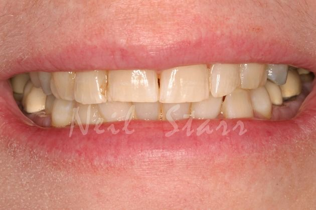 Before: 55 Year Old Female-Decayed & Worn Teeth