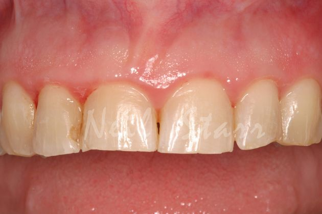 Before: Horizontal Wear of Upper Front Teeth