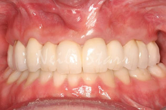 After: Crowns to Restore Teeth & Bite