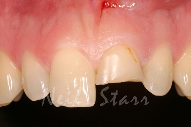 Before: Broken Central Incisor