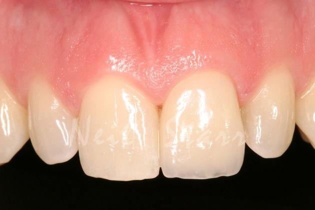 After: Restoration of Broken Central Incisor