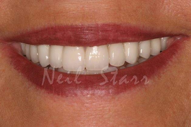 Happy Patient of Dr. Starr, in Washington DC,
