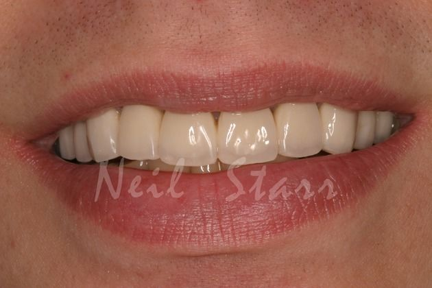 After patient functioning with temporary crowns