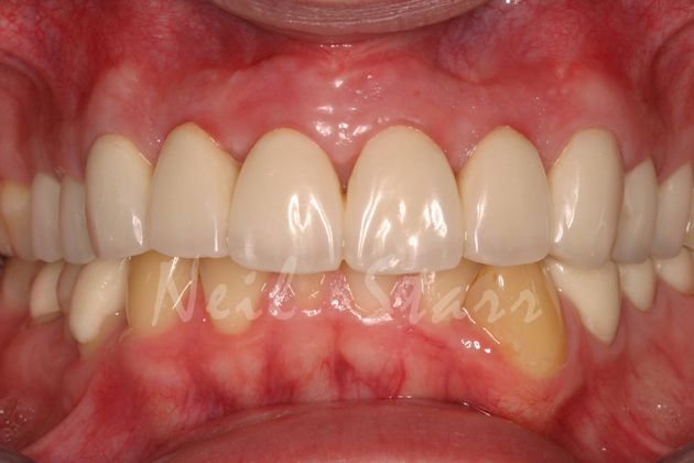 Temporary Crowns: A Blueprint for the Permanent Crowns
