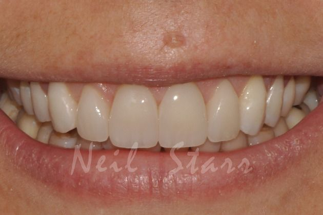 A smile achieved of a patient achieved by minimally invasive therapy at Dr. Starr and Dr. Orta's Office, in Washington, DC