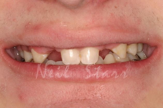 Adolescent Smile with Missing Teeth