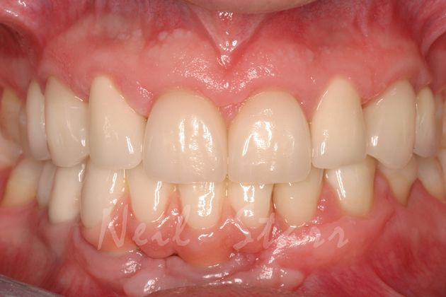 All Ceramic Crowns on Implants & Teeth