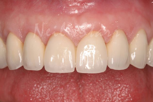 All Ceramic Crowns for Upper Teeth