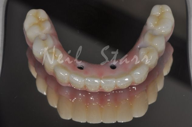 Dental Bridges made by Dr. Starr or Dr. Orta