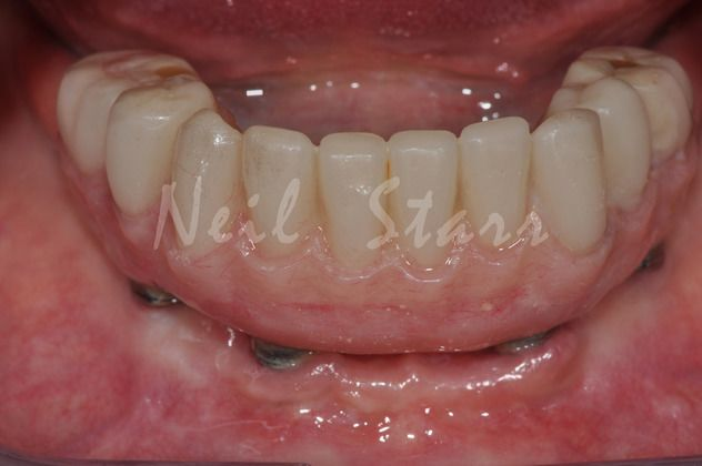 After: Same day Temporary Acrylic Bridge Supported by Newly Installed Implants