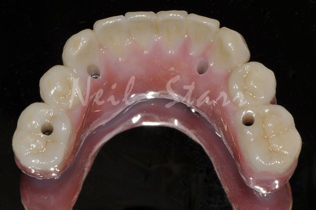 Final: Prettau<sup>Tm</sup> Style Implant-Supported Zirconia Bridge