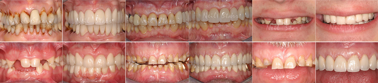 Collages of before after smiles at Neil Starr, DDS, PC