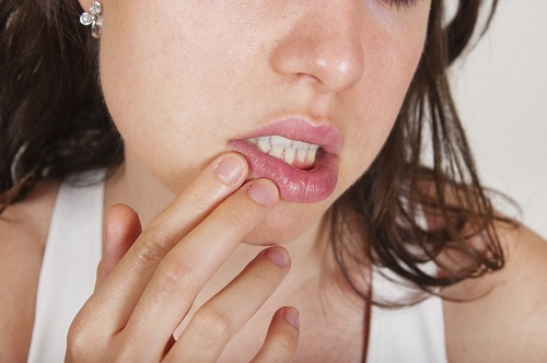 Cold Sore Myths That Could Lead to Oral Health Problems if You Believe Them