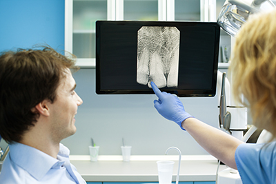 Problems That Can All Be Seen On Dental Xrays